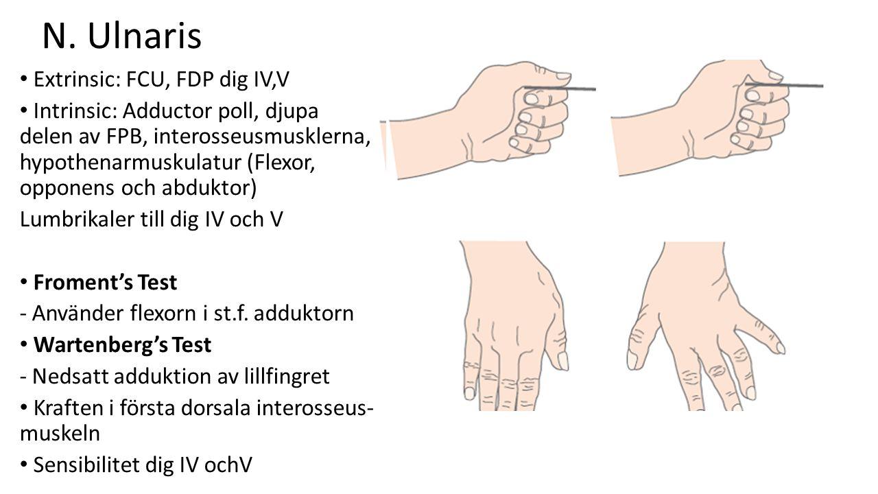 N. Ulnaris Extrinsic: FCU, FDP dig IV,V