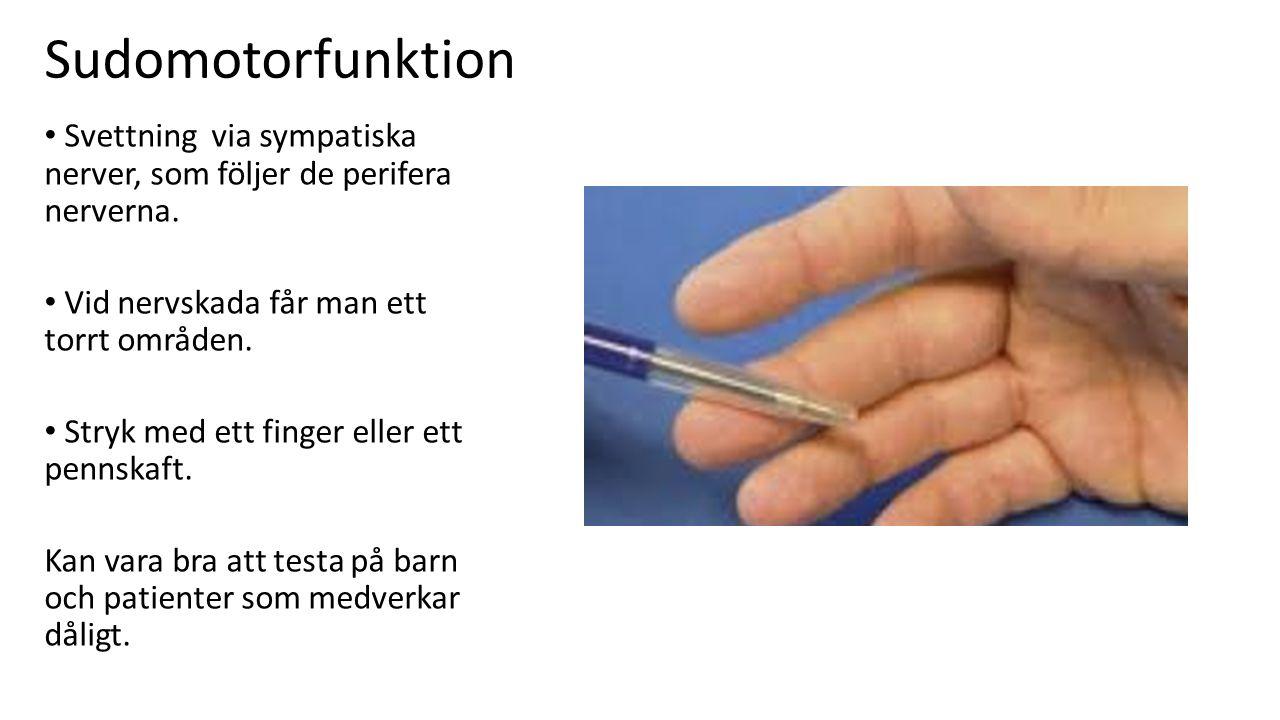 Sudomotorfunktion Svettning via sympatiska nerver, som följer de perifera nerverna. Vid nervskada får man ett torrt områden.