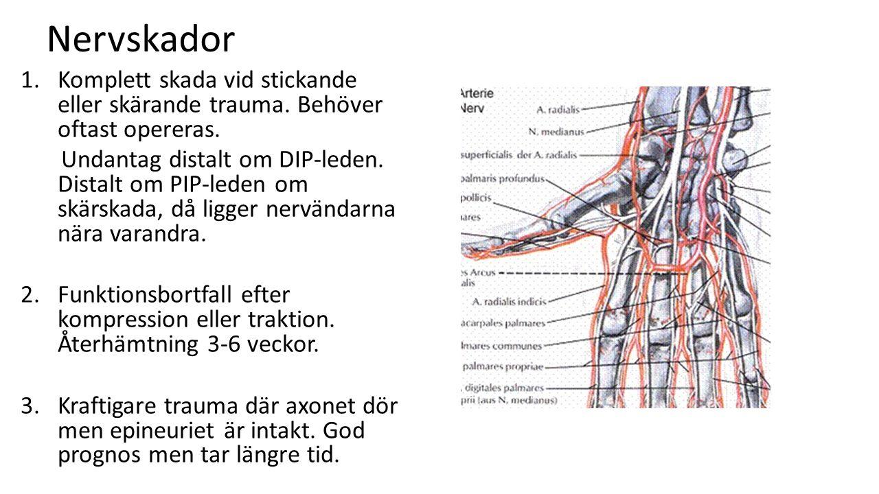 Nervskador 1. Komplett skada vid stickande eller skärande trauma. Behöver oftast opereras.