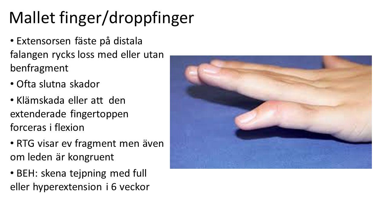 Mallet finger/droppfinger