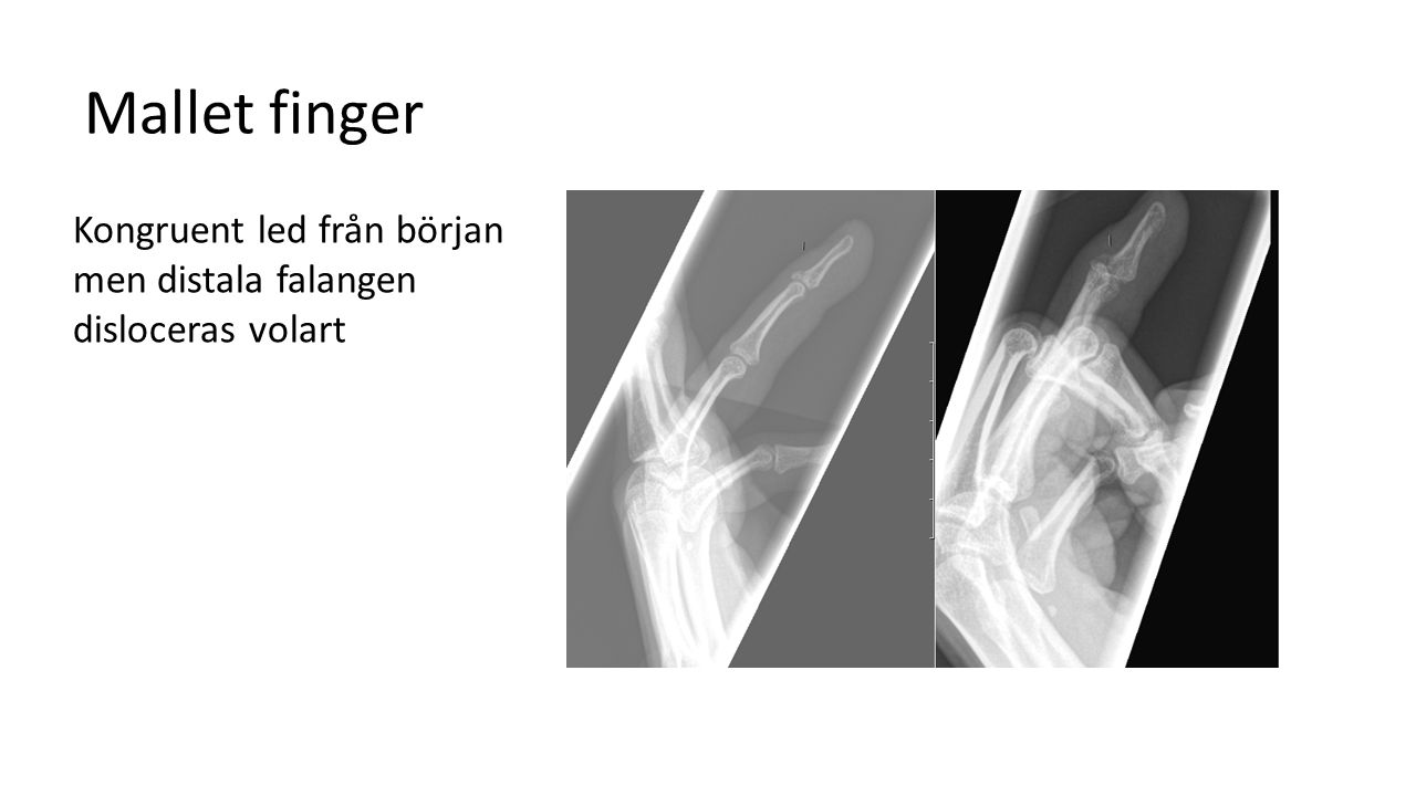 Mallet finger Kongruent led från början men distala falangen disloceras volart