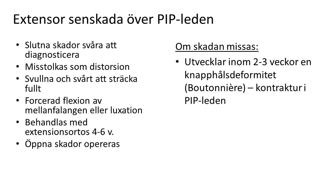 Extensor senskada över PIP-leden