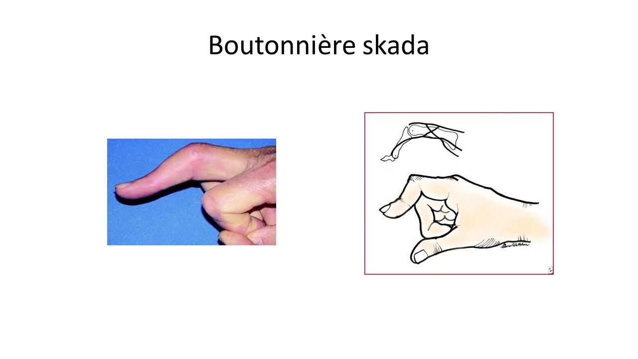 Boutonnière skada