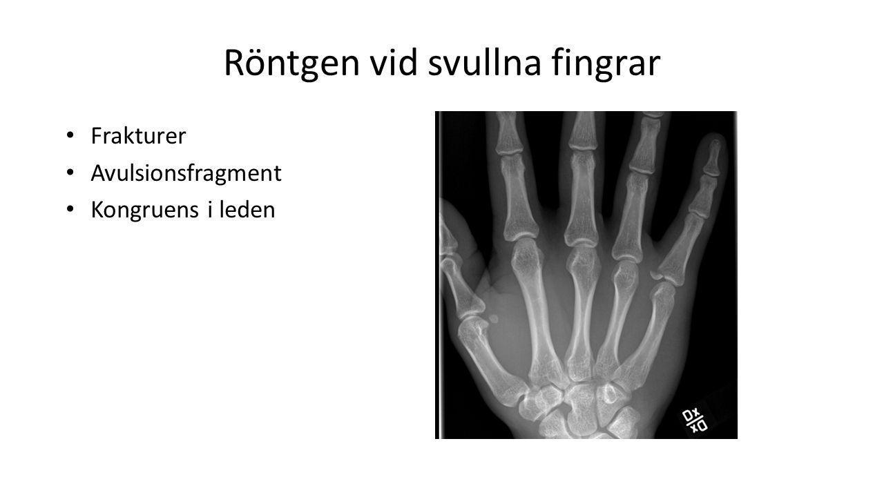 Röntgen vid svullna fingrar