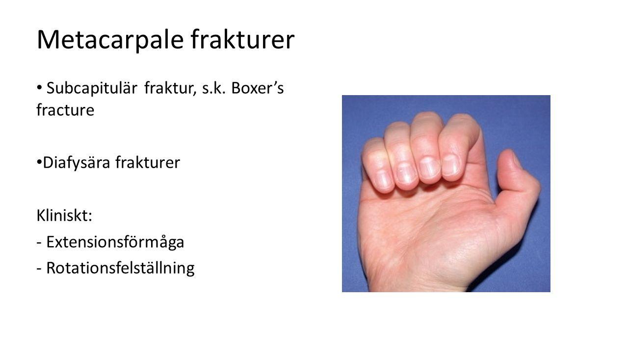 Metacarpale frakturer