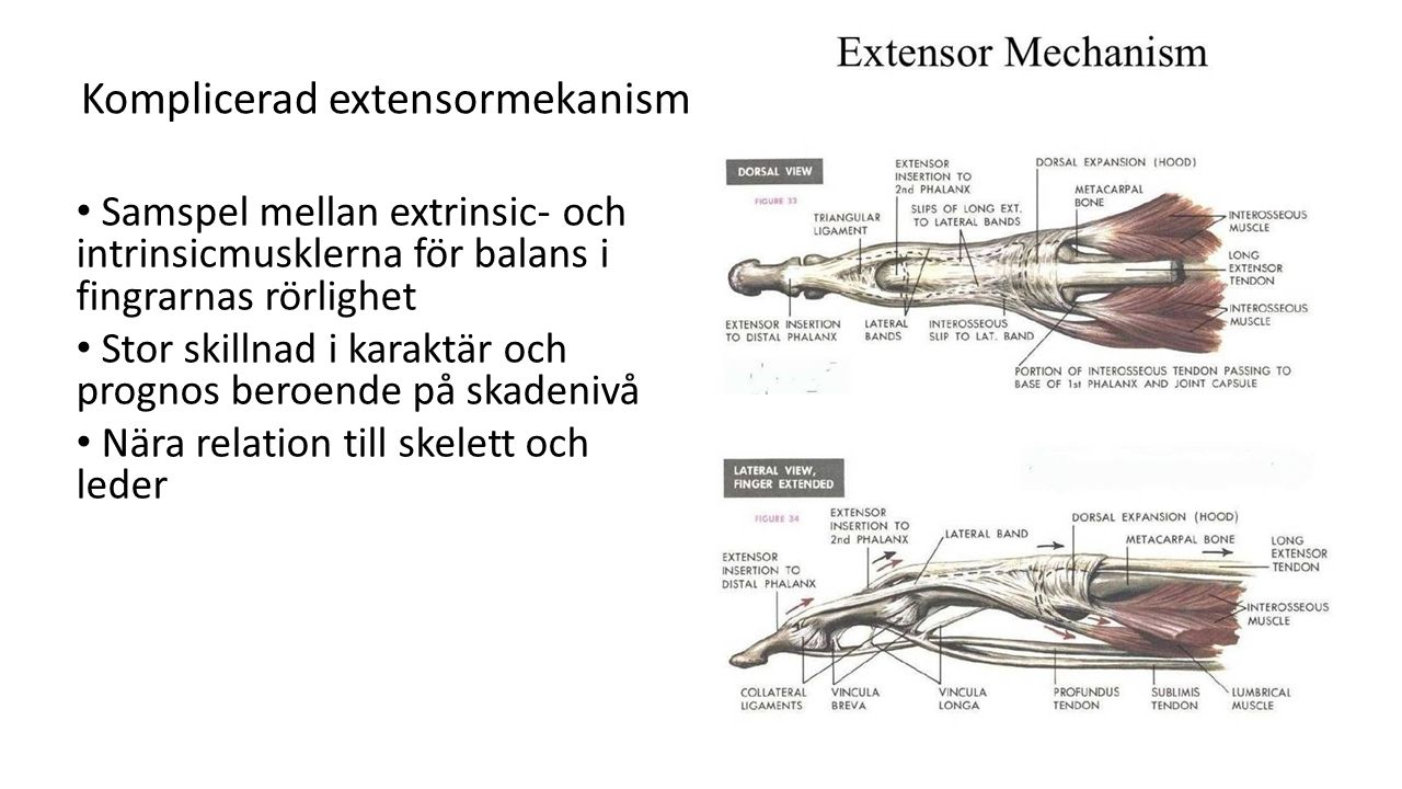 Komplicerad extensormekanism