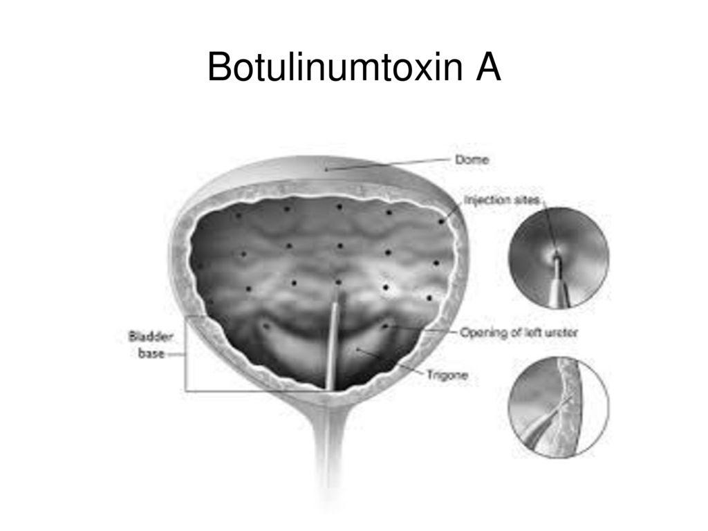 Botulinumtoxin A