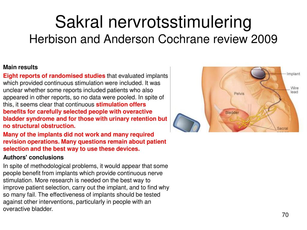 Sakral nervrotsstimulering Herbison and Anderson Cochrane review 2009