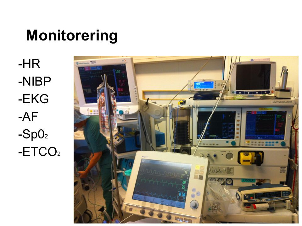 Monitorering -HR -NIBP -EKG -AF -Sp02 -ETCO2