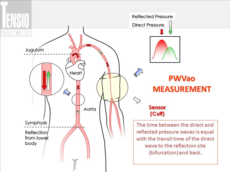 PWVao MEASUREMENT