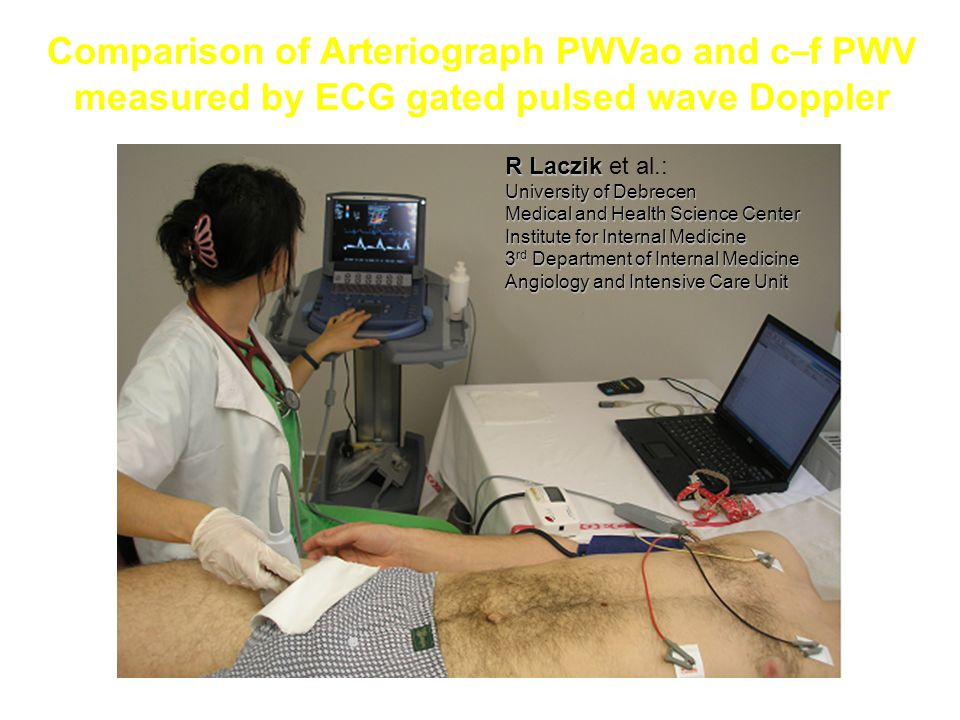 Comparison of Arteriograph PWVao and c–f PWV measured by ECG gated pulsed wave Doppler