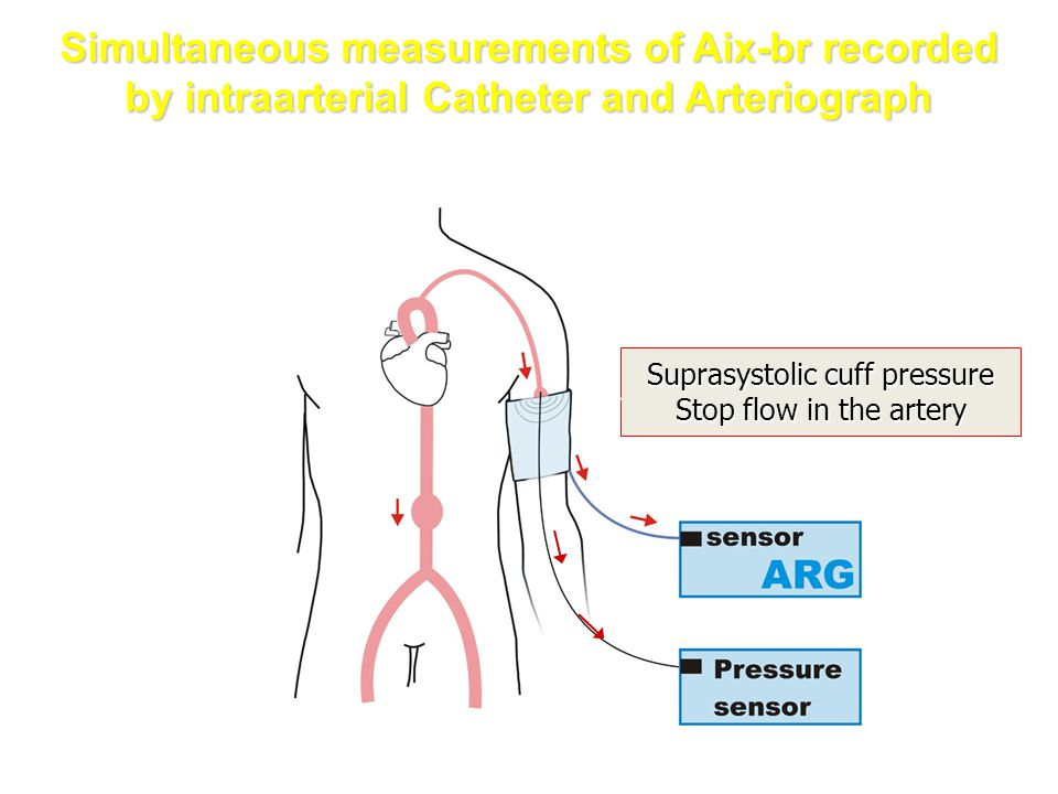 Suprasystolic cuff pressure Stop flow in the artery