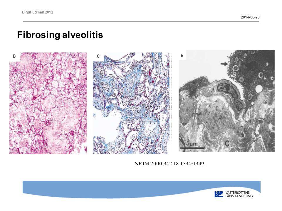 2017-04-02 Fibrosing alveolitis NEJM 2000;342,18:1334-1349.