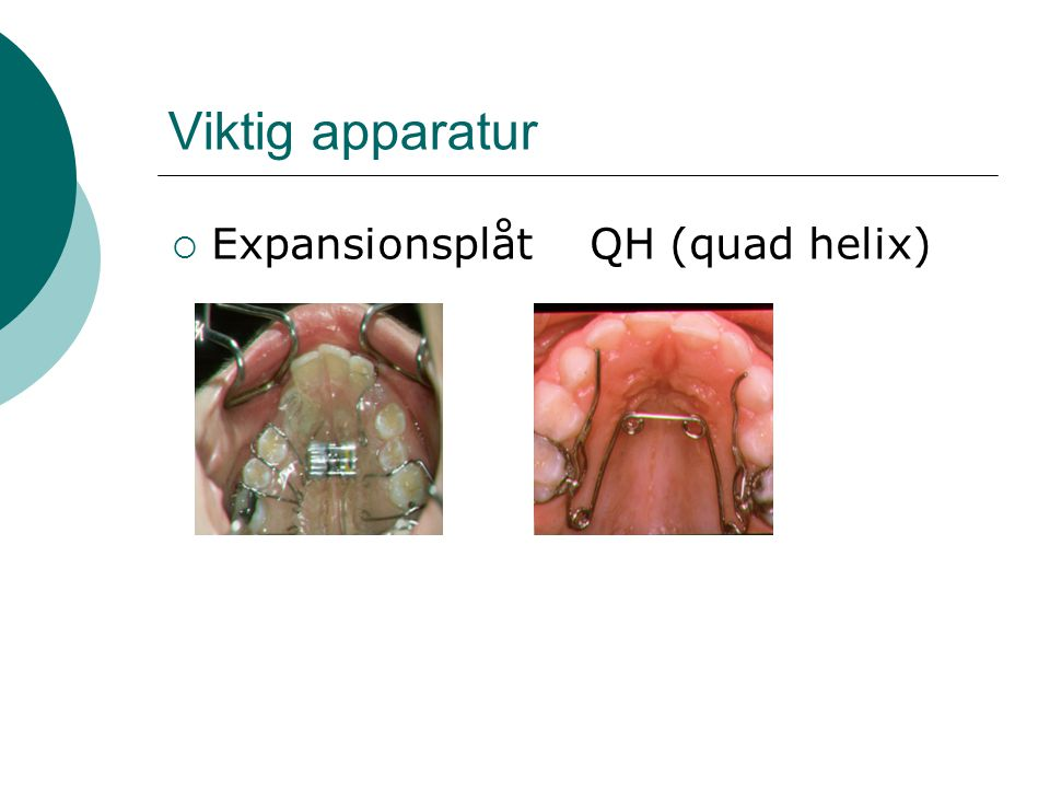 Viktig apparatur Expansionsplåt QH (quad helix)