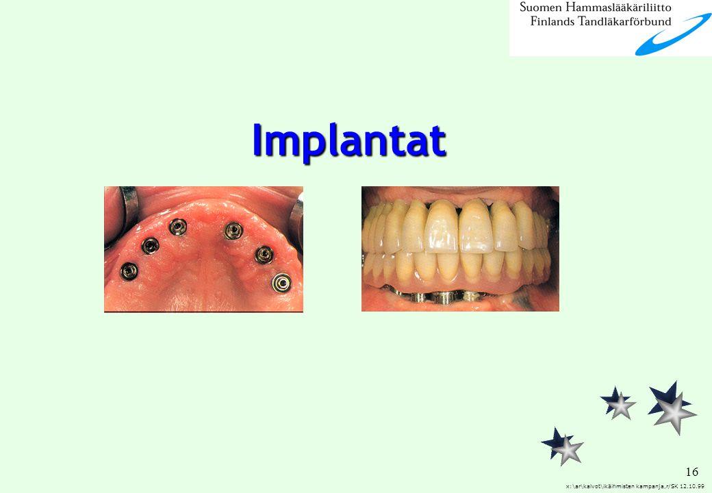 Implantat x:\ar\kalvot\ikäihmisten kampanja,r/SK 12.10.99