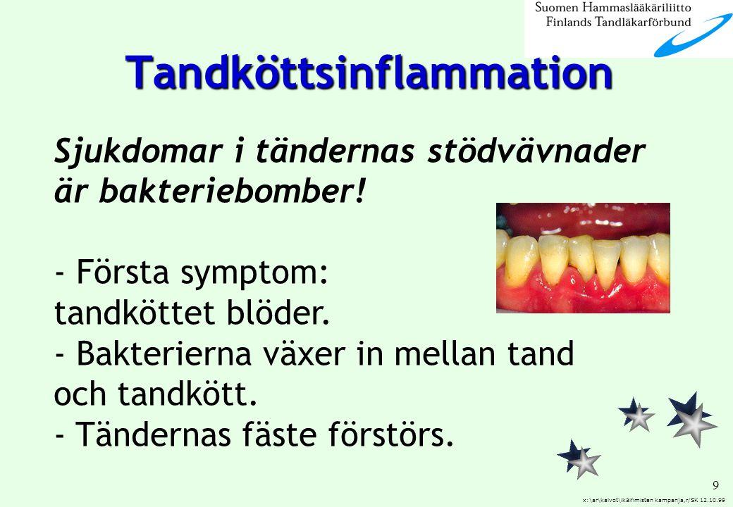 Tandköttsinflammation