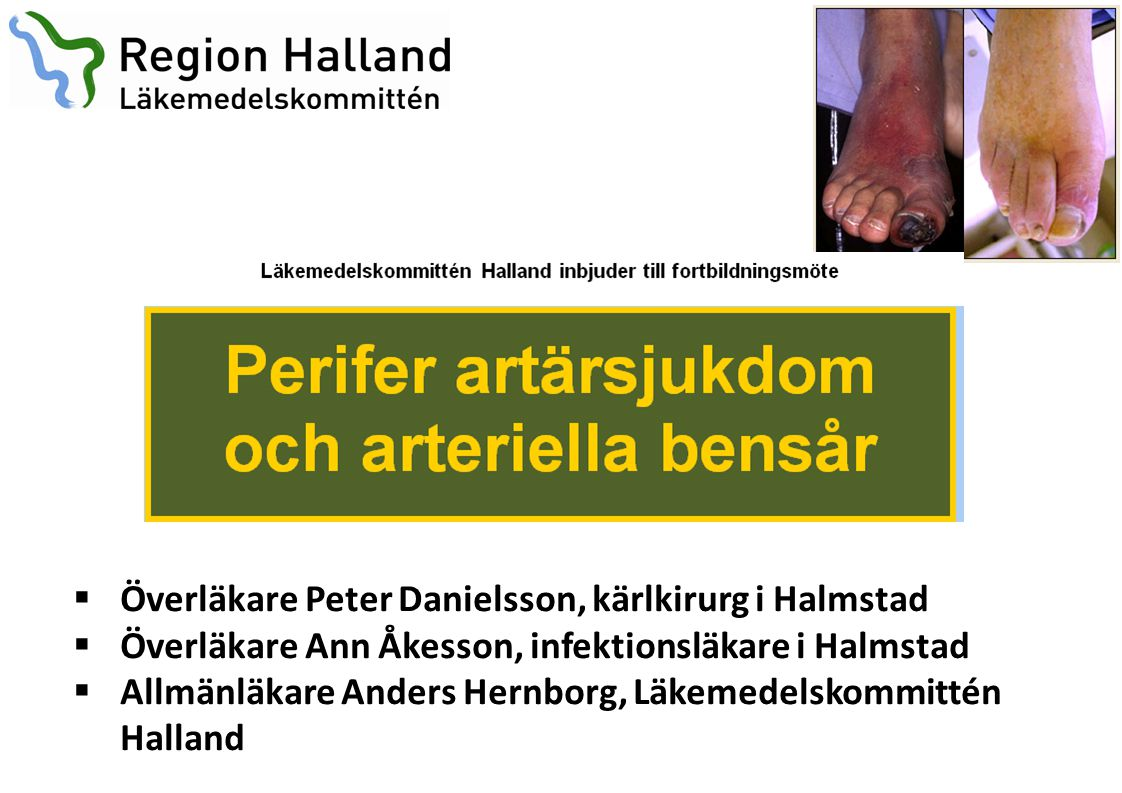 Överläkare Peter Danielsson, kärlkirurg i Halmstad