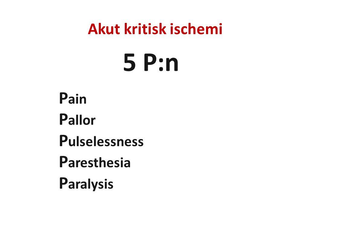 5 P:n Pain Pallor Pulselessness Paresthesia Paralysis