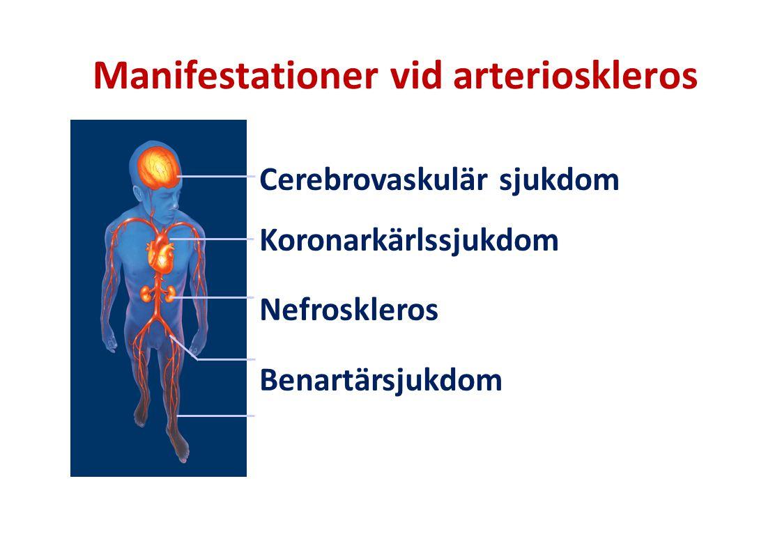 Manifestationer vid arterioskleros