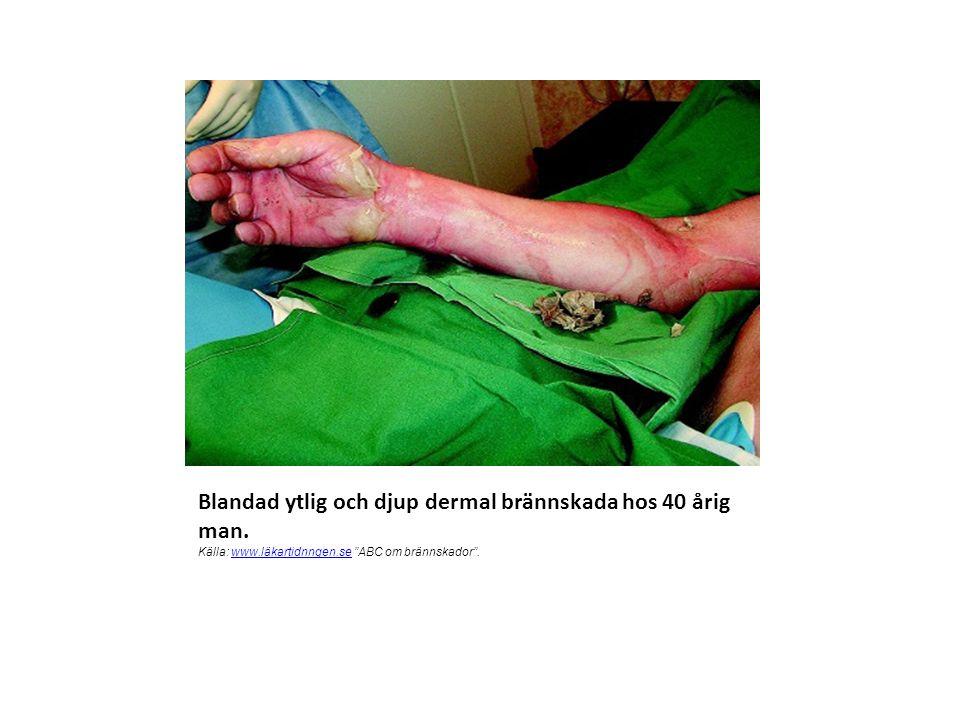 Blandad ytlig och djup dermal brännskada hos 40 årig man. Källa: www