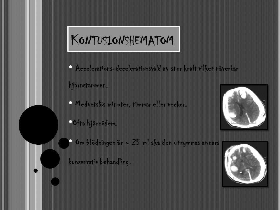 Kontusionshematom Accelerations-decelerationsvåld av stor kraft vilket påverkar hjärnstammen. Medvetslös minuter, timmar eller veckor.