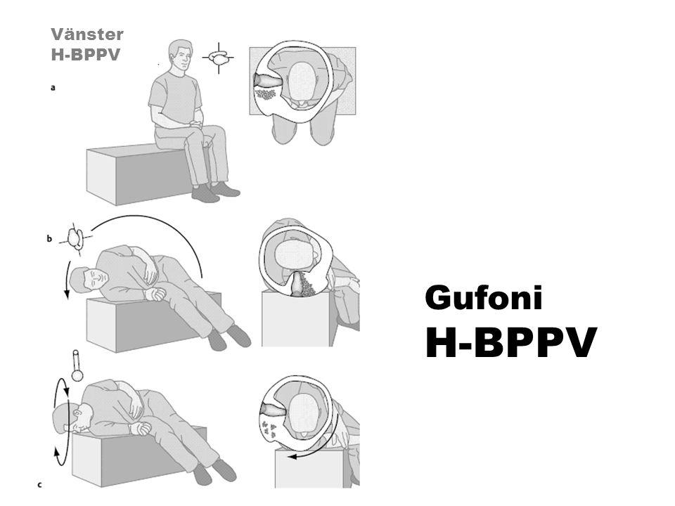Vänster H-BPPV Gufoni H-BPPV