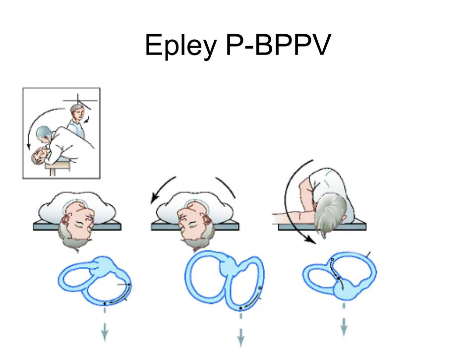 Epley P-BPPV