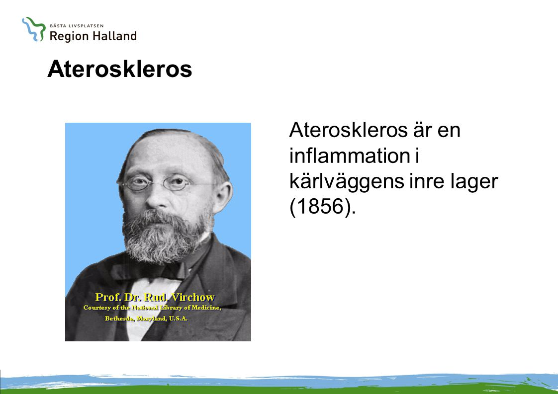 Ateroskleros Ateroskleros är en inflammation i kärlväggens inre lager (1856). Vad är då ateroskleros,