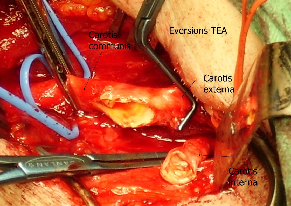 Eversions TEA Carotis communis Carotis externa Carotis interna