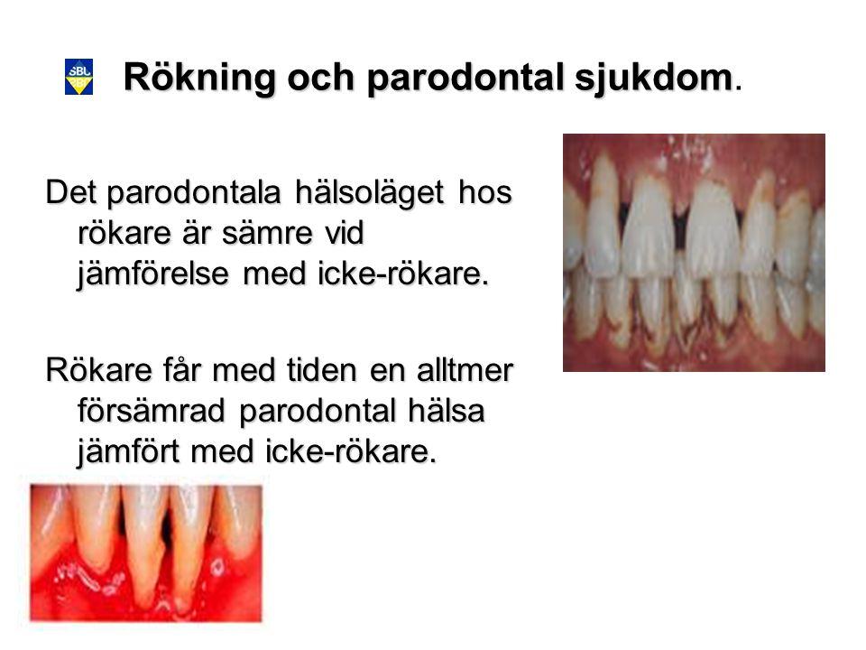 Rökning och parodontal sjukdom.