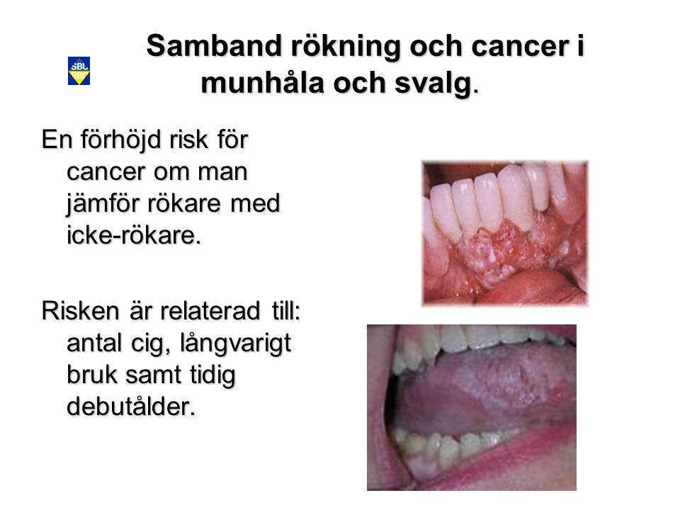 Samband rökning och cancer i munhåla och svalg.