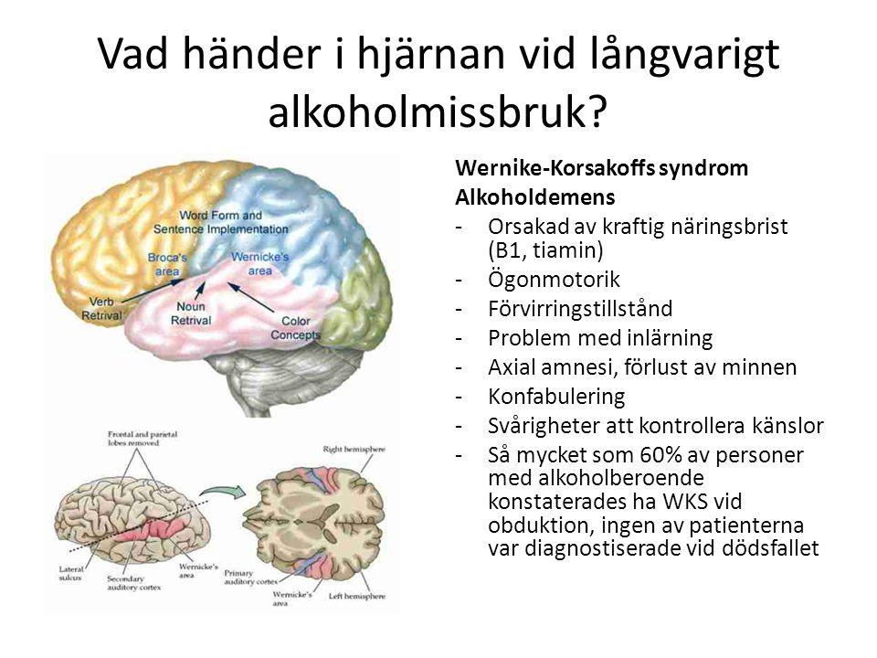 Vad händer i hjärnan vid långvarigt alkoholmissbruk