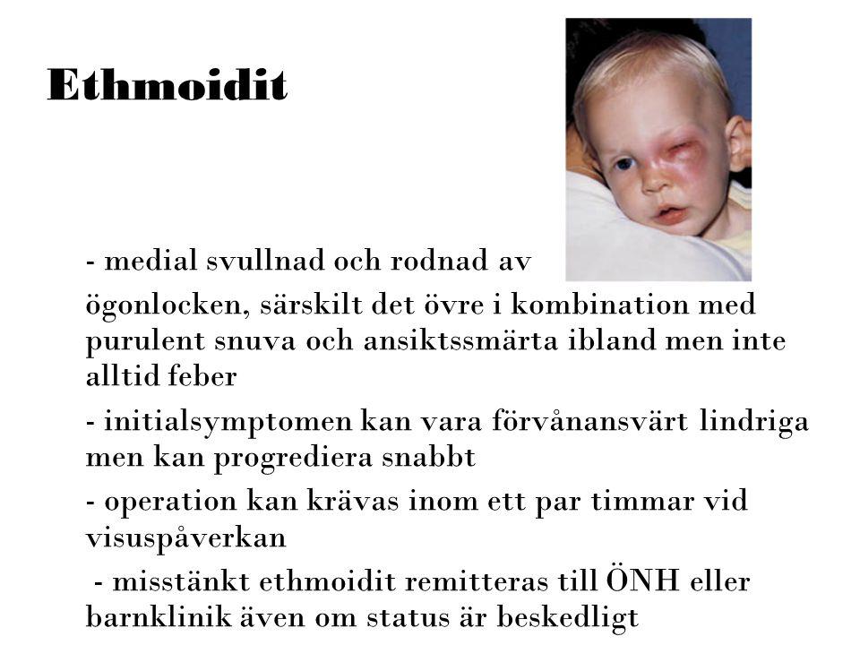 Ethmoidit - medial svullnad och rodnad av