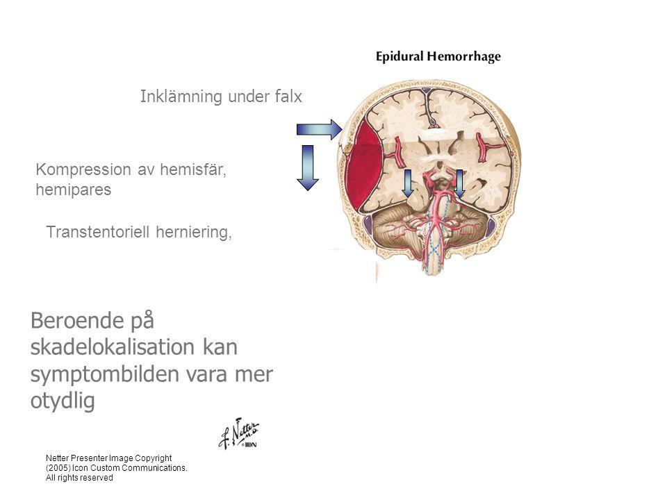 Beroende på skadelokalisation kan symptombilden vara mer otydlig