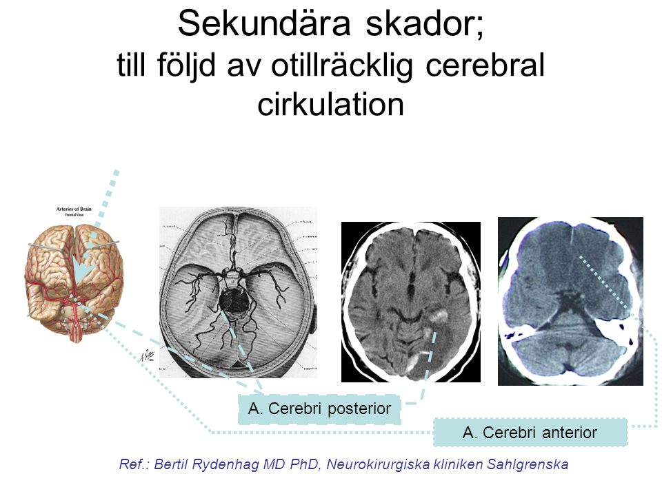 Sekundära skador; till följd av otillräcklig cerebral cirkulation