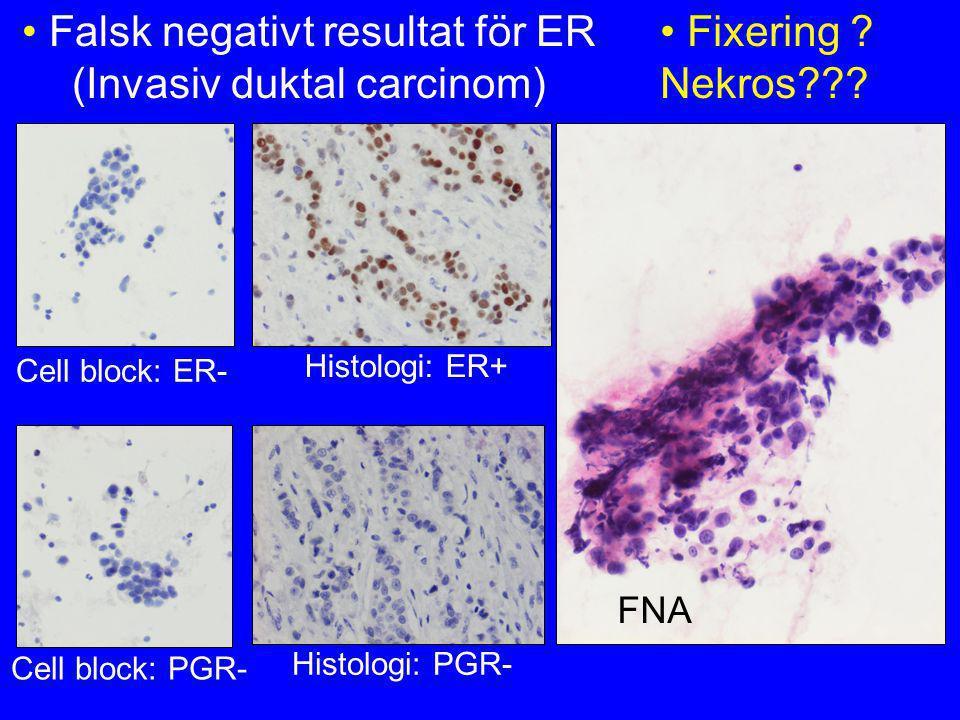 Falsk negativt resultat för ER (Invasiv duktal carcinom)