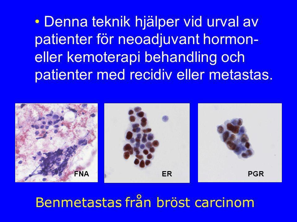 Benmetastas från bröst carcinom
