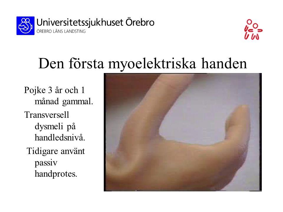 Den första myoelektriska handen