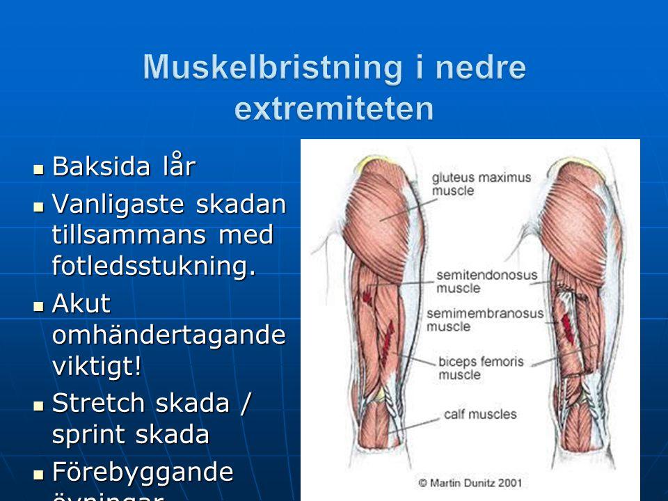 Muskelbristning i nedre extremiteten