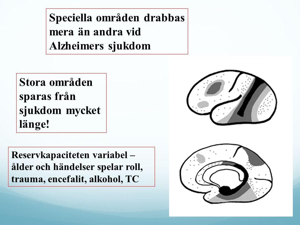 Speciella områden drabbas mera än andra vid Alzheimers sjukdom