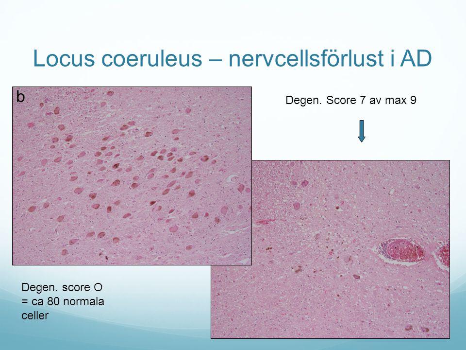 Locus coeruleus – nervcellsförlust i AD