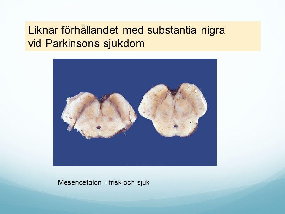 Liknar förhållandet med substantia nigra vid Parkinsons sjukdom