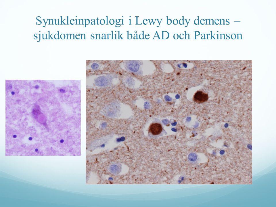 Synukleinpatologi i Lewy body demens – sjukdomen snarlik både AD och Parkinson