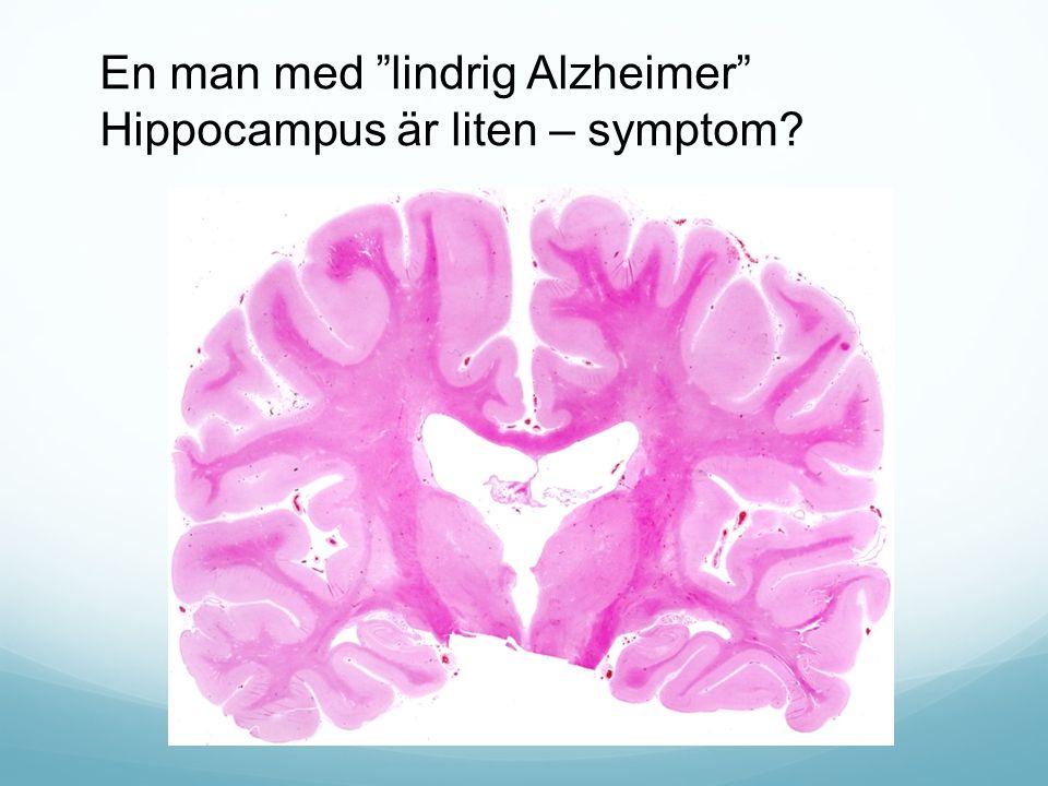 En man med lindrig Alzheimer Hippocampus är liten – symptom