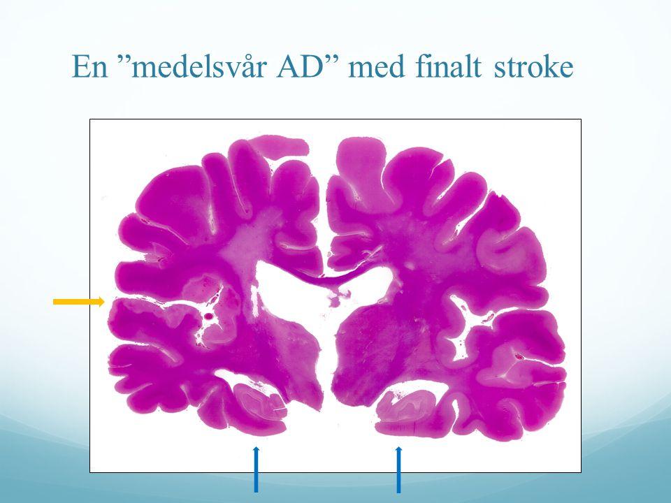 En medelsvår AD med finalt stroke