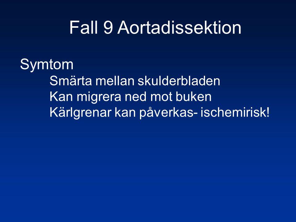 Fall 9 Aortadissektion Symtom Smärta mellan skulderbladen