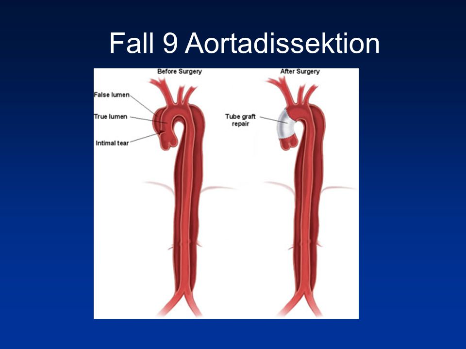 Fall 9 Aortadissektion
