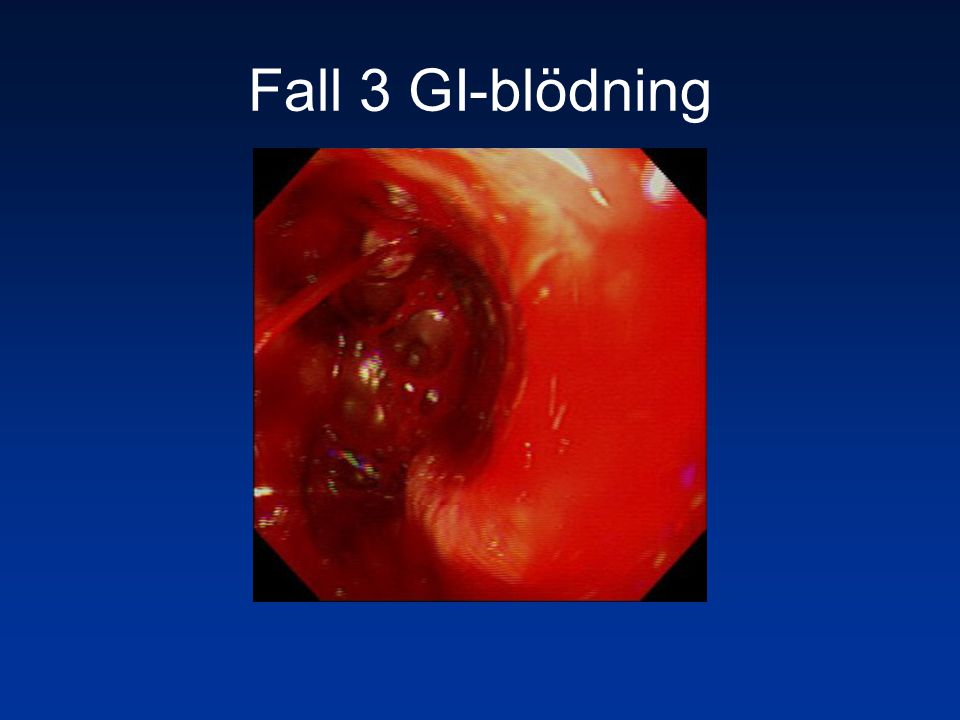 Fall 3 GI-blödning