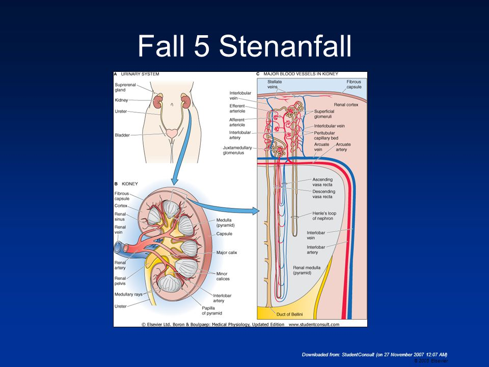 Fall 5 Stenanfall Downloaded from: StudentConsult (on 27 November 2007 12:07 AM) © 2005 Elsevier