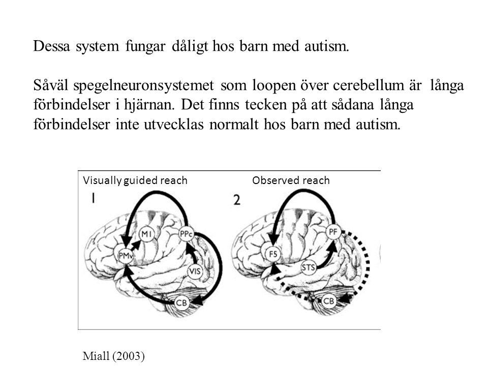Dessa system fungar dåligt hos barn med autism.